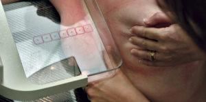 Mammografiscreening redder liv