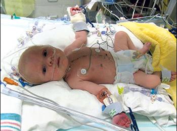 Ny operation øger overlevelse  hos spædbørn med kompleks hjertefejl