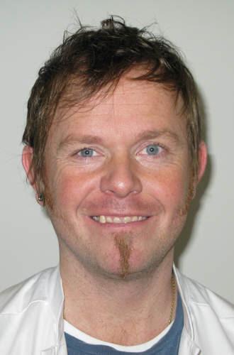 Steffen Kirstein Brisling bliver overlæge i Roskilde