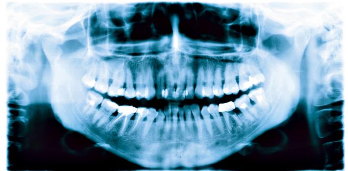 Tand-mund-kæbekirurgi: Derfor vinder Rigshospitalet