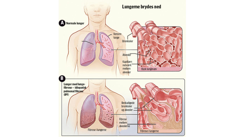 Lungelæger er bekymrede over manglende fokus på lungefibrose