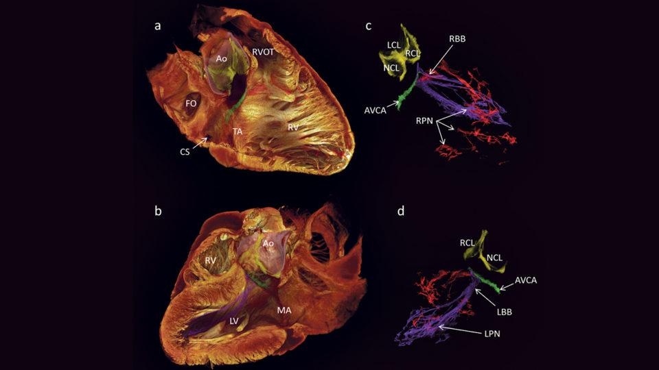 Aarhuslæger først med avancerede 3D-billeder af hjertets ledningssystem