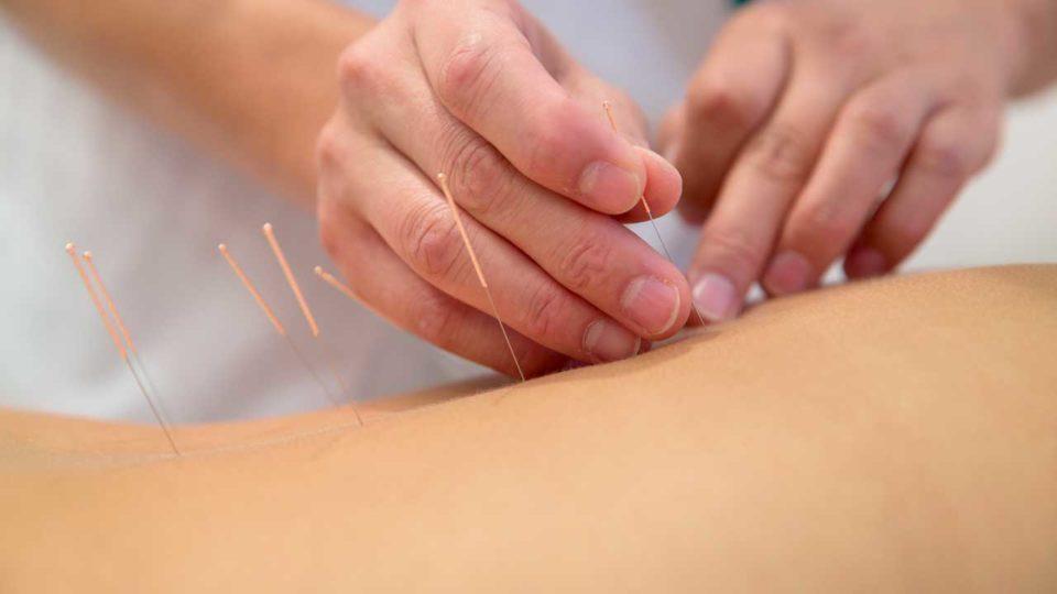 Akupunktur og kognitiv terapi kan afhjælpe søvnløshed blandt kræftoverlevere