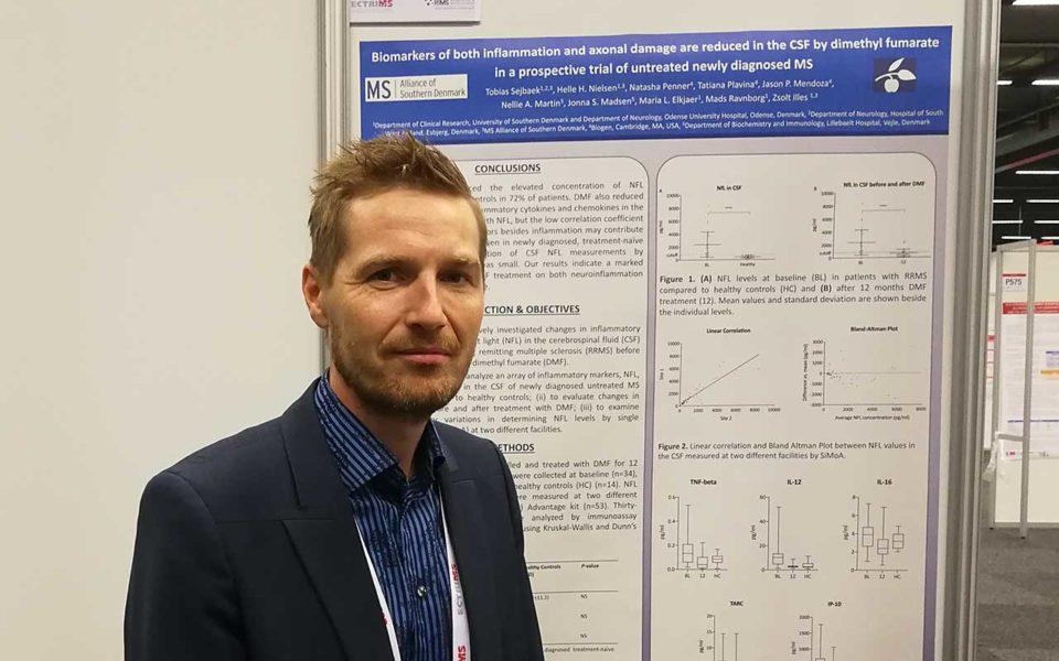 Beskeden kobling mellem neurofilamenter og inflammationsmarkører