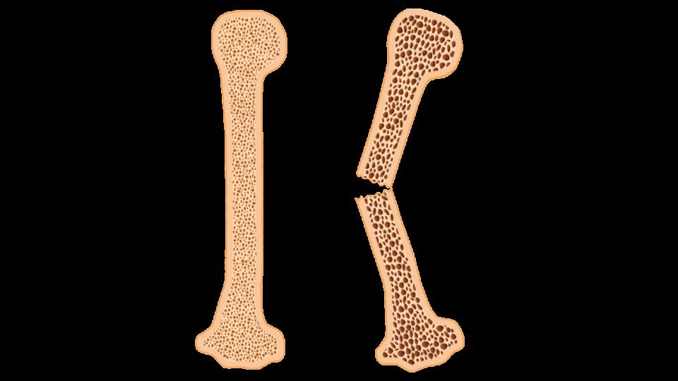 Ulighed i sundhed for osteoporosepatienter skal måske løses regionalt