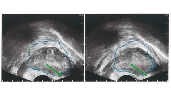 Mange patienter med mistænkt prostatakræft har ikke adgang til den bedste diagnostik