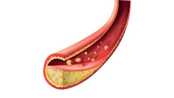Højt HDL-kolesterol har ikke hjertebeskyttende effekt